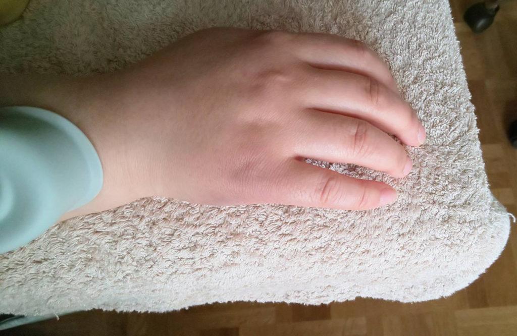 突き指の施術